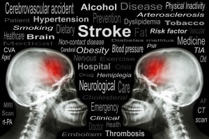 StrokeiStock_000042417122