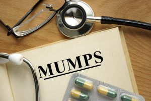 Mumps across the US and how to prevent it and spot it