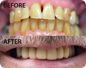 Before image courtesy of Implant Dentistry of Florida.