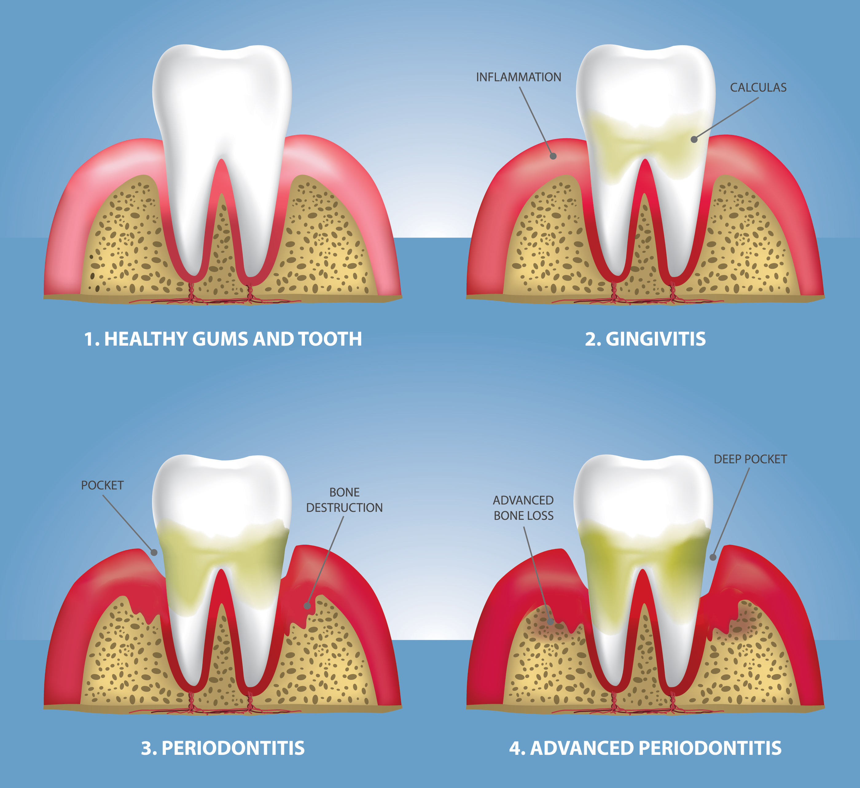 how to take care of gum disease