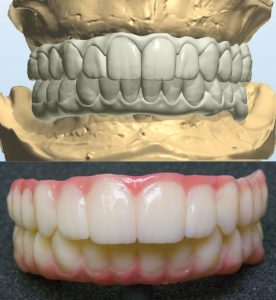 Prosthesis and scan graphics courtesy of Port Charlotte Dental Care