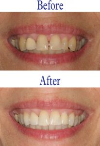 Before and after images courtesy of Stephen G. Blank, DDS.