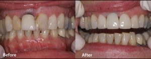 Before and after images courtesy of Michael J. Andersen, DDS, P.A.