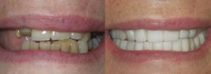 Before and after images courtesy of Port Charlotte Dental Care.