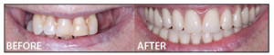 Cira Stang received implants and a Same Day Teeth® smile reconstruction from Michael Pikos, DDS,