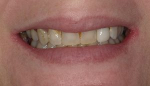Dr. Clark Brown of Implant Dentistry of Florida in Melbourne made Debbie Beavan all-porcelain crowns and a fixed bridge and fit Laurent Moriniere with a fixed bridge and a dental implant with crown.