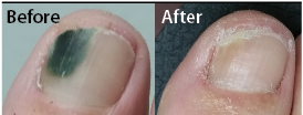 Laser therapy relieves nagging toe problem