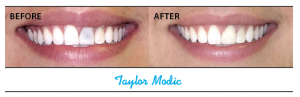 Dr. Stephen Lester of Park Avenue Dentistry in Edgewater treated Taylor Modic and Ron Marinello with all-porcelain crowns.
