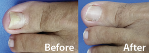 Elisabeth Timmermans developed toenail fungus, but Dr. Chiu corrected the problem with PinPointe FootLaser therapy.