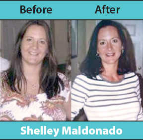 Before and after images courtesy of L.I.V. Medical Weight Loss & Aesthetics