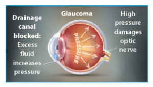 Dr. Ana-Maria Oliva talks about cataracts and glaucoma and the advancements in treating them, including the iStent inject® device for glaucoma.