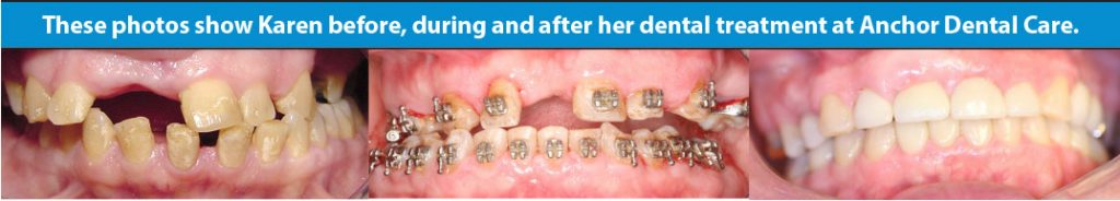 Before and after images courtesy of Anchor Dental Care.