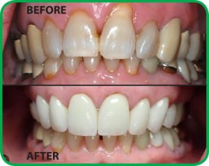 Before and after images courtesy of Stuart Periodontics, P.A.