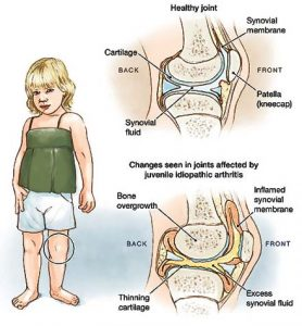 http://homeo.ae/article/arthritis-children