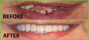 Before and after images courtesy of Dental Specialists of North Florida.