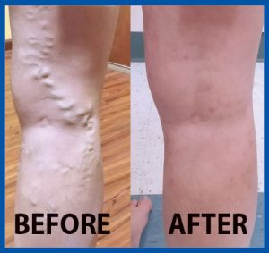 Before and after images courtesy of Suncoast Vein & Vascular Clinic.
