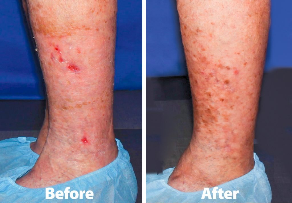 Before and after images courtesy of Joyce Vein & Aesthetic Institute and The Ulcer Center.
