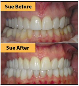 Photo courtesy of Advanced Dentistry of Fort Myers.