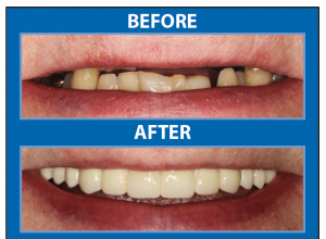 Photo courtesy of Bayway Dental.