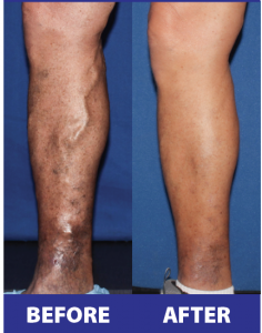 Before and after images courtesy of Joyce Vein & Aesthetic Institute.