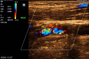 Ultrasound and MRI photo courtesy of McGreevy NeuroHealth.