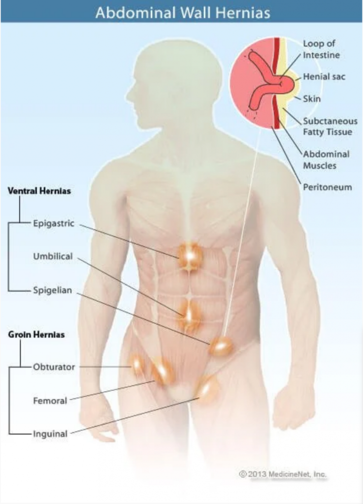 Graphic courtesy of MedicineNet. (https://www.medicinenet.com/hernia_overview/article.htm)