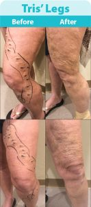 Before and after images courtesy of Vein Specialists