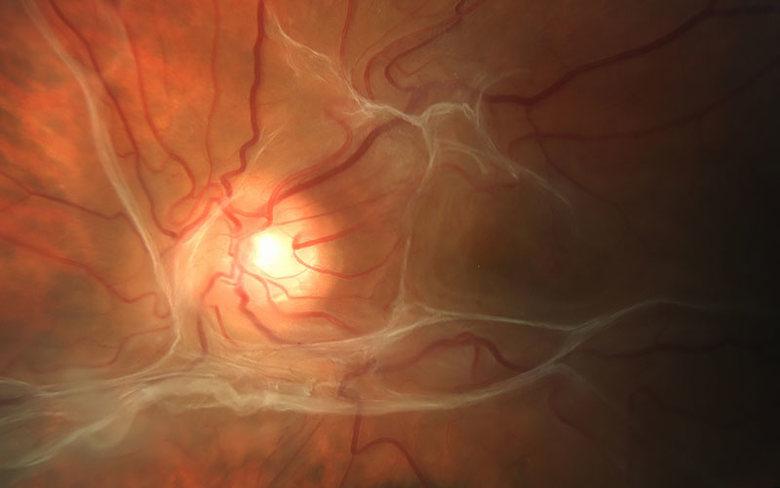 Katherine Lachut, Virginia Commonwealth University Ophthalmology