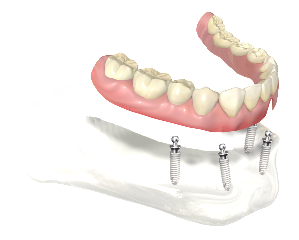 Complete bottom teeth that secure to multiple implants